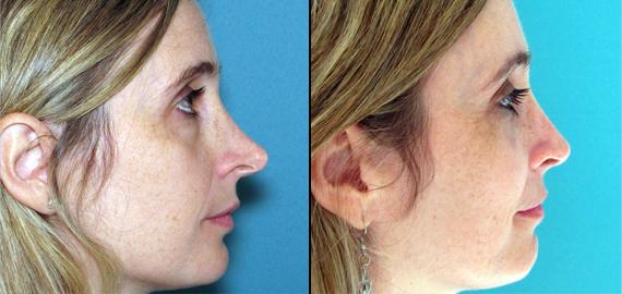 antes y despues de cirugia, antes y despues de cirugia de nariz