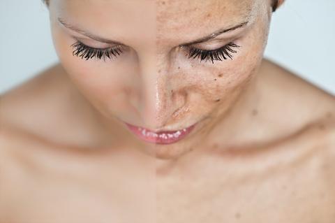 lifting facial, mw estetica, como combatir las arrugas, cirugia plastica buenos aires